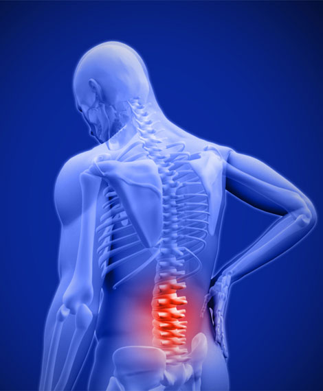 post-laminectomy-syndrome-img