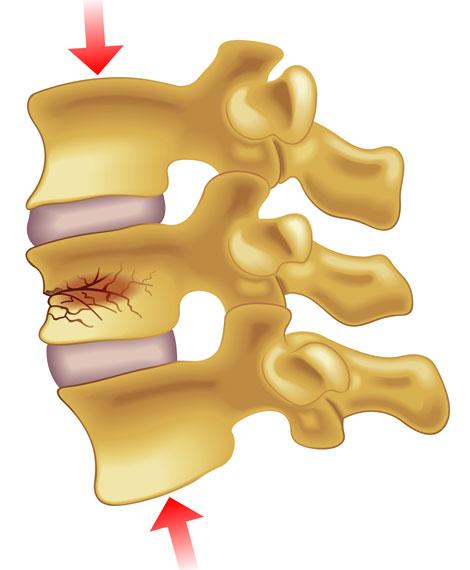 vertebral-compression-fractures-img